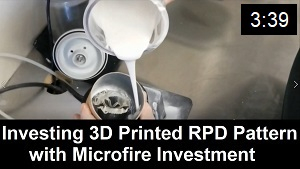 Investing 3D Printed RPD Pattern
